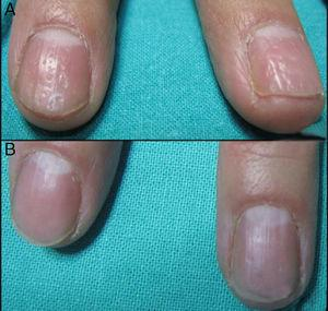 (A) Nail matrix psoriasis of the right hand before treatment. (B) After four sessions of PDL.