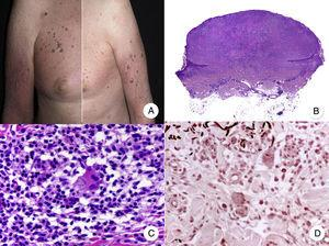 A, Photograph showing a patient with atrophic plaques and atrophic nodules with a parchment-like surface. B, Panoramic view of a diffuse infiltrate occupying the entire dermis. C, Detailed view at a higher magnification of the infiltrate, showing atypical lymphocytes and elastophagocytosis. D, Orcein stain showing the absence of elastic fibers in the dermis.