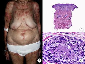Granulomatous mycosis fungoides. A, Photograph of patch-stage and plaque-stage mycosis fungoides lesions distributed on the trunk and extremities. B, Panoramic view showing perivascular sarcoidal granulomas throughout the dermis. C, Detailed view of a granuloma composed of atypical lymphocytes, histiocytes, and giant multinucleated cells.
