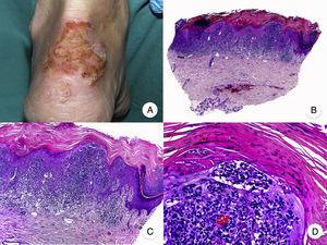Pagetoid reticulosis. A, Photograph showing a solitary erythematous, hyperkeratotic, psoriasiform plaque on the heel. B, Panoramic view showing epidermal hyperplasia, hyperkeratosis, and parakeratosis and an infiltrate in the papillary dermis. C,D, Higher-magnification view showing the marked epidermotropism of the infiltrate, formed by atypical pagetoid lymphocytes with large hyperchromatic nuclei.