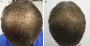 A 26-year-old man with androgenetic alopecia at the vertex. Improvement after treatment with injections of dutasteride in monotherapy every 3 months. A, At baseline. B, After a year of treatment.