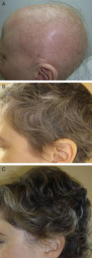 A 34-year-old woman with alopecia areata universalis. Hair regrowth after treatment with oral minipulses of dexamethasone at a dose of 0.1mg/kg/d on 2 consecutive days each week. A, At baseline. B, Month 4 of treatment. B, Month 8 of treatment.