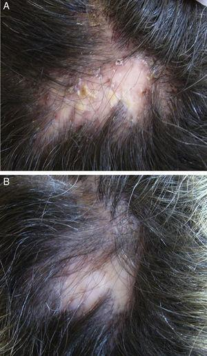 A 33-year-old woman with folliculitis decalvans. Clinical improvement after 10 weeks of treatment with rifampicin, 300mg every 12hours, plus clindamycin, 300mg every 12hours. A, At baseline. B, At the end of treatment.