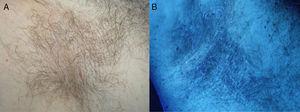 A, Yellowish-white structures adherent to axillary hairs. B, Wood light examination: weak yellow-white fluorescence.