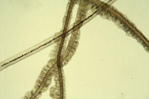 Mucoid sheaths around the hairs. Potassium hydroxide, original magnificationx40.
