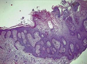 Hematoxylin-eosin, original magnification ×10.
