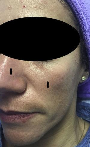 Glycolic acid peel. Erythema prior to neutralization with aqueous bicarbonate solution for the patient's insupportable feeling of pruritus. Erythema, indicated by the arrows, was mild in this case.