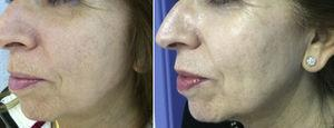 Photos at baseline and 10 days after a ZO 3-Step peel. Changes include increased luminosity, uniformity of skin color, and improved skin texture.
