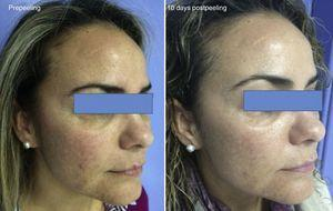 Melasma. Improvement produced by a reduction in pigmentation and in variability of skin color 10 days after performing the peel.