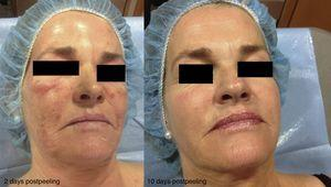 Photoaging. Changes after a ZO 3-Step peel.
