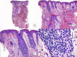 Biopsy of facial papule. A and B, At low magnification, several vellus follicles can be observed with numerous sebaceous glands (hematoxylin-eosin [H-E] ×10, H-E ×100, respectively). C and D, Detail of the inflammatory infiltrate surrounding the upper portion of the vellus follicles (H-E ×200, HE ×400, respectively).