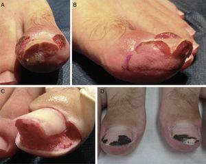 Patient 3. Bilateral stage 3 disease. A, Right great toe. B, Left great toe: A dermographic marker is used to outline the tissue to be excised. C, Intraoperative image after U excision of the periungual granulation tissue. D, Four weeks after surgery, silver nitrate is still visible on the nail plate.