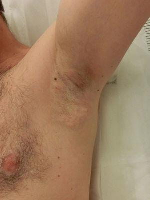 Local inflammation and subcutaneous nodules after treatment.