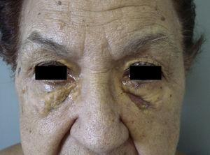 Infiltrated xanthomatous plaques in a patient with IgG paraproteinemia.