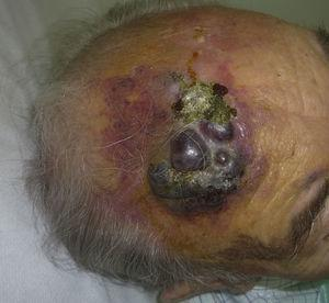 Reddish-violaceous plaque with nodular areas on the forehead of an elderly male.