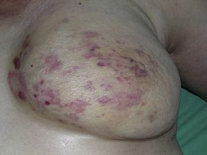 Multiple macules and erythematous patches with several reddish papules on yellowish skin on a breast irradiated due to cancer.