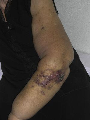 Reddish-violaceous papules and nodules with bruise-like areas on an arm with lymphedema secondary to breast cancer surgery.