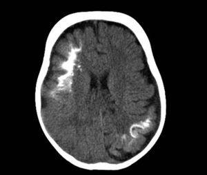 Cranial computed tomography without contrast enhancement. Axial cut at the level of the lateral ventricles, showing multiple calcifications in both hemispheres with a curvilinear and gyriform pattern, associated with loss of brain volume at these sites.
