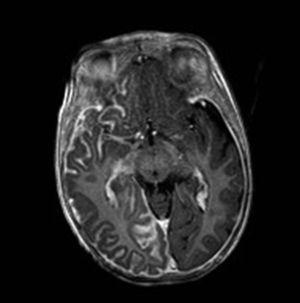 Cranial T1 magnetic resonance imaging, with gadolinium enhancement. Axial plane at the level of the mesencephalon, showing leptomeningeal thickening and uptake typical of leptomeningeal angiomatosis in a patient with SWS.