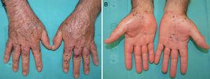 A and B, Macules, papules, and a hemorrhagic blister on the back of hands, the palms, and the wrists.