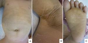 (A) Generalized xerosis with fine desquamation on the trunk. (B) Hyperkeratotic and brownish skin on the armpits. (C) Hyperkeratotic skin on the soles.
