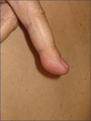 Plaque-type neural proliferation on the pulp of finger of a patient with neurofibromatosis type 2.