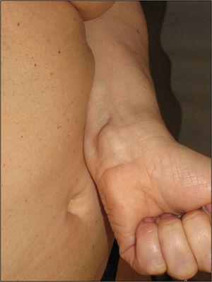 Plaque-type neural proliferation on the anterior face of the wrist of a patient with neurofibromatosis type 2.