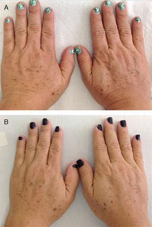 Dorsal surfaces of treated hands. A, Before treatments with platelet-rich plasma. B, After treatments.