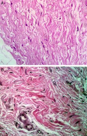 Histologic features of biopsied tissue; hematoxylin and eosin, original magnification ×40. A, After treatments with platelet-rich plasma the number of fibroblasts increased. B, Before treatments.