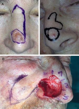 A, The Rieger flap for the dorsum of the nose. B, The nasolabial flap for reconstruction of the nasal ala. C, The bilobar flap for the tip of the nose. Photographs courtesy of Dr. Ricardo Ruiz Villaverde.