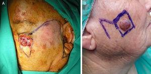 A, The Mustardé flap for the infraorbital cheek. B, The Limberg flap was the flap of choice for the zygomatic, buccal, and parotid-masseteric subunits of the cheek. Photographs courtesy of Dr. Antonio Ramírez Andreo.