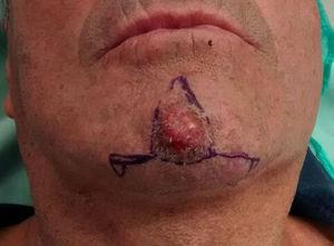 A-T flap for the chin. Photograph courtesy of Dr. Ana Miragaya.