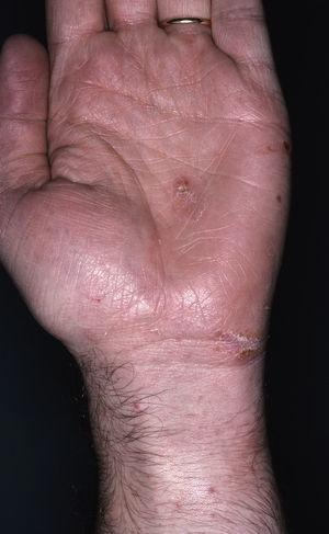 Scabietic burrows and nodules in volar surface of the wrists.