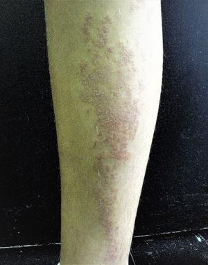 Clinical photograph of a patient with lichen striatus.
