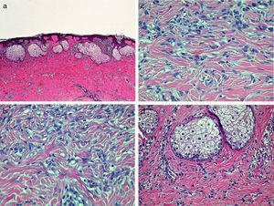 A, A poorly defined proliferation of spindle-shaped cells with nests of sebaceous cells in the more superficial region. Hematoxylin and eosin (H&E), original magnification×40. B, At higher magnification, a dermal proliferation formed of spindle-shaped cells with a whorled pattern. H&E, original magnification×200. C, Entrapment of collagen fibers between fibroblastic cells at the periphery of the lesion. H&E, original magnification×200. D, The nests of sebaceous cells at higher magnification. H&E, original magnification×100.