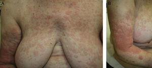A and B, Urticarial rash of fleeting pink edematous papules and plaques on the trunk and limbs, with no desquamation.