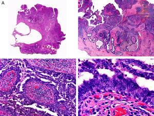 Histopathologic characteristics of syringocystadenocarcinoma papilliferum. A, Panoramic view showing neoplastic aggregates of varying shapes and sizes invading the dermis. B, Papillary structures connected to the epidermal surface. C, Note how these papillary structures are lined with a double layer of epithelial cells. D, Images of nuclear atypia and pleomorphism in the epithelial cells lining the papillae. (Hematoxylin-eosin, original magnification ×10 [A], ×40 [B], ×200 [C], ×400 [D]).