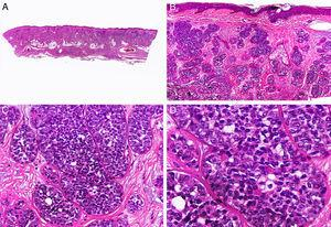 Histopathologic characteristics of malignant cylindroma. A, Panoramic view showing a poorly circumscribed tumor invading the full thickness of the dermis. B, The tumor is formed by aggregates of neoplastic basaloid cells. C, Aggregates distributed in a jigsaw-like pattern. D. Detail of one of the neoplastic aggregates surrounded by a thick basement membrane. (Hematoxylin-eosin, original magnification ×10 [A], ×40 [B], ×200 [C], ×400 [D]).