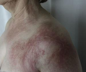 Case 1. Edematous plaque with a livedoid appearance and poorly delimited borders covering the entire shoulder region, extending to the proximal third of the deltoids.