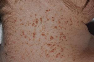 Multiple basal cell carcinomas in a patient with Gorlin syndrome. Courtesy of Dr. A. Hernández Martín.