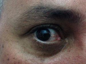 Conjunctival hyperemia.