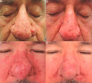 A, Patient 6, a 60-year-old man with severe rhinophyma. B, Good clinical response 2 weeks after electrosurgical treatment. Note the mild postsurgical erythema. C, Patient 7, a 56-year-old man with severe rhinophyma previously treated with isotretinoin. D, Surgical response with good scarring 12 weeks after the procedure.