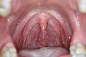 Photograph of the oral cavity taken with adequate lighting, which allows higher-quality photographs and faster focusing.