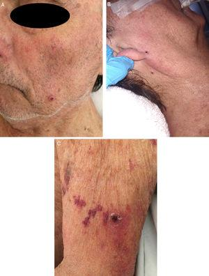 Multiple rounded purpuric papules with central umbilication, ranging in size from 2mm to 4mm, located on the face (A and B) and the limbs (C).