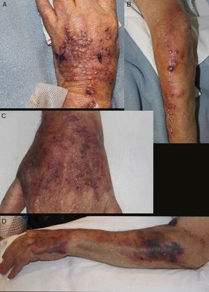 A and B, Well-defined infiltrated erythematous-violaceous plaque on the dorsum of the hand, with pustular and crusted lesions on the surface. Nodular and ulcerated lesions distributed in a sporotrichoid fashion on the forearm. C and D, Lesions resolving in the form of purpuric macules and crusted debris on the dorsum of the hand and forearm.