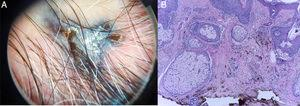 A, Dermoscopic findings showing a homogeneous blue pattern with shiny white streaks. B, Fibrosis and proliferation of nevus cells with marked intracytoplasmic melanin pigmentation and melanophages in the dermis, with no signs of malignancy.