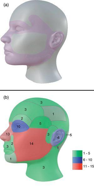 (a) Model for H zones of the face. (b) Model of distribution for all tumors in head and neck in our study. In green: areas with tumor density of 1–5. In blue: areas with tumor density of 6–10. In red: areas with tumor density of 11–15.