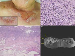 (a) Painful, erosive lesions on the upper chest with peripheral tense blisters (insert). (b) Histological features showing dense neutrophil infiltration throughout the edematous dermis. (c) Higher magnification showed neutrophil infiltration. (d) MRI examination revealed edematous swelling on the right gluteus maximus muscle.