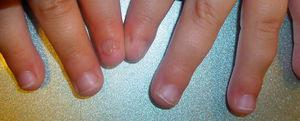 Patient #3. Polyonychia of the left index finger and nail dystrophy of the right index finger.