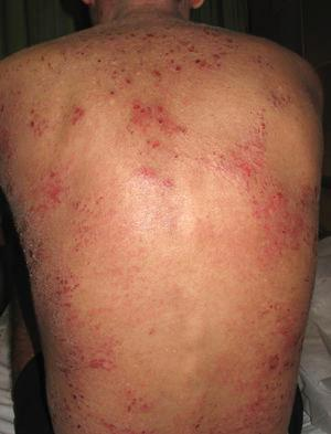 Severe atopic dermatitis. Note the multiple erosions, excoriated papules, and marked xerosis on the back.